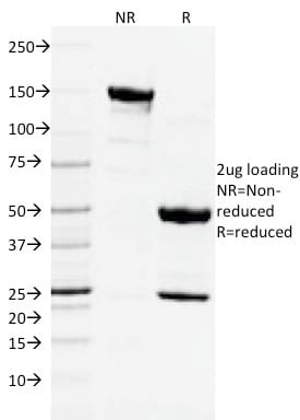 SDS-PAGE Analysis Purified CD3e Mouse Monoclonal Antibody (C3e/2478). Confirmation of Purity and Integrity of Antibody.