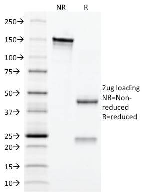 SDS-PAGE Analysis Purified CD3e Mouse Monoclonal Antibody (C3e/2479).Confirmation of Purity and Integrity of Antibody.