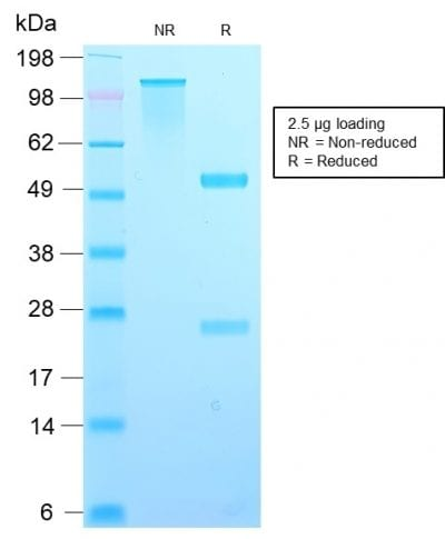 SDS-PAGE Analysis Purified TIMP2 Rabbit Recombinant Monoclonal Antibody (TIMP2/2488R). Confirmation of Purity and Integrity of Antibody.