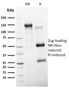 SDS-PAGE Analysis Purified CD11c Mouse Monoclonal Antibody (ITGAX/2507).Confirmation of Purity and Integrity of Antibody.