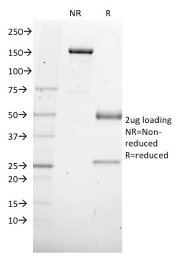 SDS-PAGE Analysis Purified SOX4 Mouse Monoclonal Antibody (SOX4/2540).Confirmation of Purity and Integrity of Antibody.
