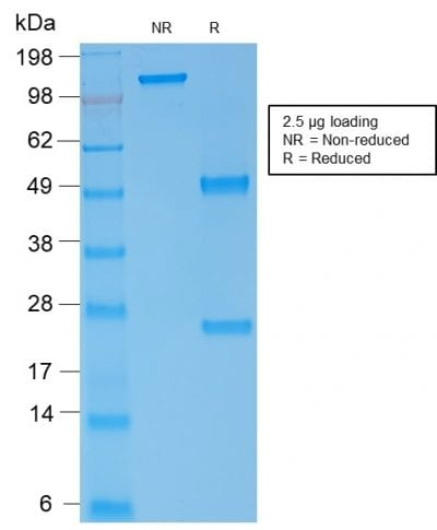 SDS-PAGE Analysis Purified Spectrin alpha 1 Mouse Recombinant Monoclonal (rSPTA1/1833). Confirmation of Purity and Integrity of Antibody.