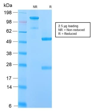 SDS-PAGE Analysis Purified IgM Rabbit Recombinant Monoclonal Antibody (IGHM/2559R). Confirmation of Purity and Integrity of Antibody.