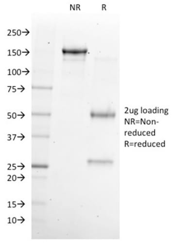 SDS-PAGE Analysis Purified NKX6.1 Mouse Monoclonal Antibody (NKX61/2561). Confirmation of Purity and Integrity of Antibody.