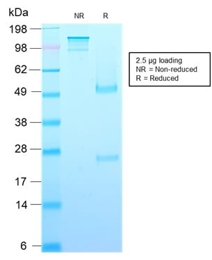 SDS-PAGE Analysis Purified Growth Hormone Recombinant Mouse Monoclonal (rGH/1450). Confirmation of Purity and Integrity of Antibody.
