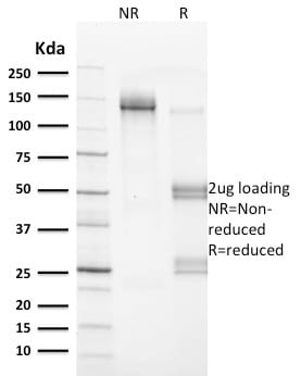 SDS-PAGE Analysis Purified VCL Mouse Monoclonal Antibody (VCL/2572).Confirmation of Purity and Integrity of Antibody.