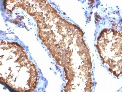 Formalin-fixed paraffin-embedded human Testis stained with VCL Mouse Monoclonal Antibody (VCL/2572).