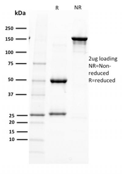 SDS-PAGE Analysis  Purified PAX5 Mouse Monoclonal Antibody (PAX5/2595).Confirmation of Purity and Integrity