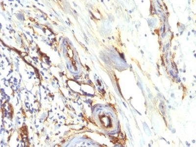 Formalin-fixed paraffin-embedded human Colon Carcinoma stained with CD34 Recombinant Rabbit Monoclonal Antibody (HPCA1/2598R).