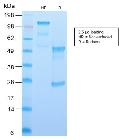 SDS-PAGE Analysis Purified CD34 Recombinant Rabbit Monoclonal Antibody (HPCA1/2598R). Confirmation of Purity and Integrity of Antibody.