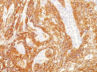 Formalin-fixed paraffin-embedded human Lung SqCC stained with EGFRvIII Rabbit Recombinant Monoclonal Antibody (GFR/2600R).
