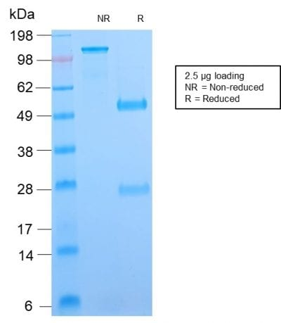 SDS-PAGE Analysis Purified B7-H4 Rabbit Recombinant Monoclonal Antibody (B7H4/2652R). Confirmation of Purity and Integrity of Antibody.