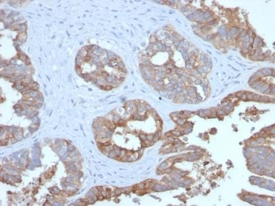Formalin-fixed paraffin-embedded human Prostate Carcinoma stained with MUC1 Recombinant Rabbit Monoclonal Antibody (MUC1/2729R).