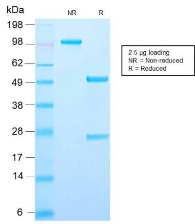 SDS-PAGE Analysis Purified Recombinant Rabbit Monoclonal Antibody (AMACR/2748R)Confirmation of Purity and Integrity of Antibody.