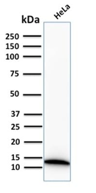 Western Blot Analysis of human HeLa Cell lysate using S100A4 Recombinant Rabbit Monoclonal Antibody (S100A4/2750R).