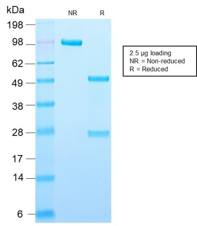 SDS-PAGE Analysis Purified Adipophilin Recombinant Rabbit Monoclonal Antibody (ADFP/2755R). Confirmation of Purity and Integrity of Antibody.