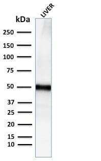 Western Blot Analysis for human Liver tissue lysate using Adipophilin Recombinant Rabbit Monoclonal Antibody (ADFP/2755R).