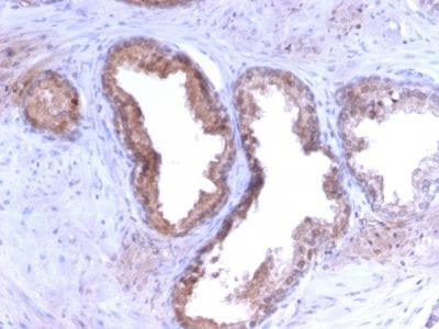 Formalin-fixed paraffin-embedded human Prostate Carcinoma stained with PSA Rabbit Recombinant Monoclonal Antibody (KLK3/2871R).