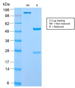 SDS-PAGE Analysis of Purified Secretory Component Rabbit Recombinant Monoclonal (ECM1/2889R). Confirmation of Purity and Integrity of Antibody.