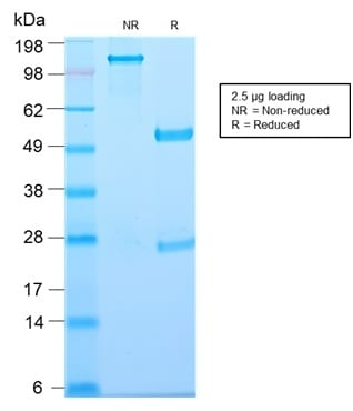 SDS-PAGE Analysis of Purified Thymidine Phosphorylase Rabbit Recombinant Monoclonal (TYMP/2890R). Confirmation of Purity and Integrity of Antibody.