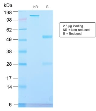 SDS-PAGE Analysis Purified PLAP Rabbit Recombinant Monoclonal Antibody (ALPP/2899R). Confirmation of Purity and Integrity of Antibody.