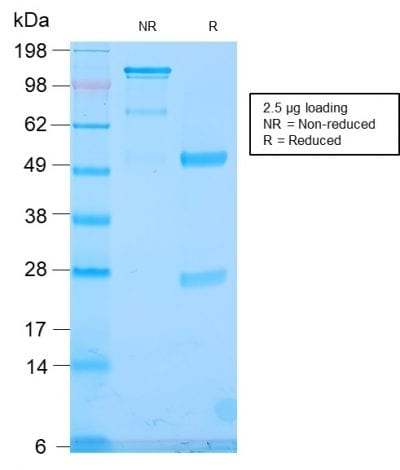 SDS-PAGE Analysis Purified TLE1 Rabbit Recombinant Monoclonal Antibody (TLE1/2946R). Confirmation of Purity and Integrity of Antibody.