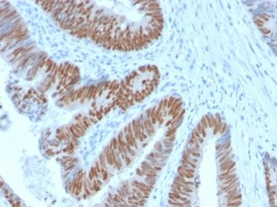 Formalin-fixed paraffin-embedded human Colon Carcinoma stained with CDX2 Rabbit Recombinant Monoclonal Antibody (CDX2/2951R).