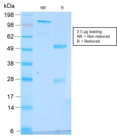 SDS-PAGE Analysis Purified pS2 Rabbit Recombinant Monoclonal Antibody (TFF1/2969R). Confirmation of Purity and Integrity of Antibody.