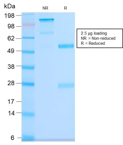 SDS-PAGE Analysis Purified CD63 Rabbit Recombinant Monoclonal Antibody (LAMP3/2990R). Confirmation of Purity and Integrity of Antibody.