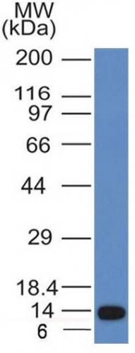 Western Blot Analysis of recombinant fragment of ALK using ALK Monoclonal Antibody (ALK/1031).