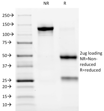 SDS-PAGE Analysis Purified ALK Mouse Monoclonal Antibody (ALK/1032). Confirmation of Purity and Integrity of Antibody.